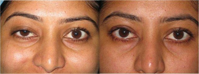Ptosis of the left eye after sugery